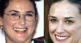 Fotos de famosos antes y después de pasar por quirófano. ¿Cómo pueden seguir negando que se han operado?