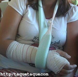 brazo derecho inmovilizado