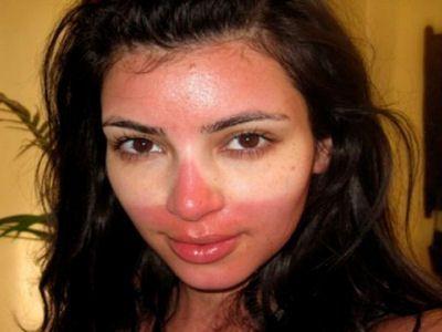 Kim Kardashian quemada